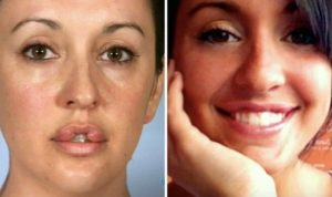 Catherine Reitman Mouth Surgery